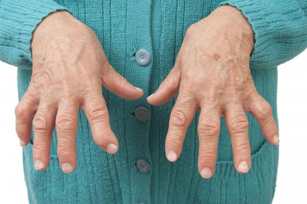 Viêm Khớp Dạng Thấp – Rheumatoid Arthritis